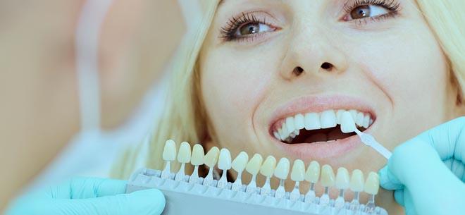 implantes-dentales-precios 660 × 305